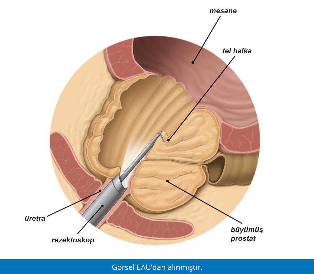 TUR Ameliyatı